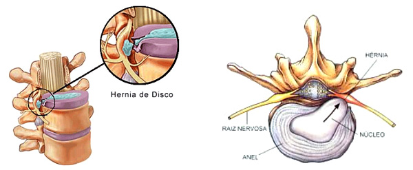 Cirurgia Minimamente Invasiva da Coluna: Tipos, Recuperação, Como é Feito?   Exenin